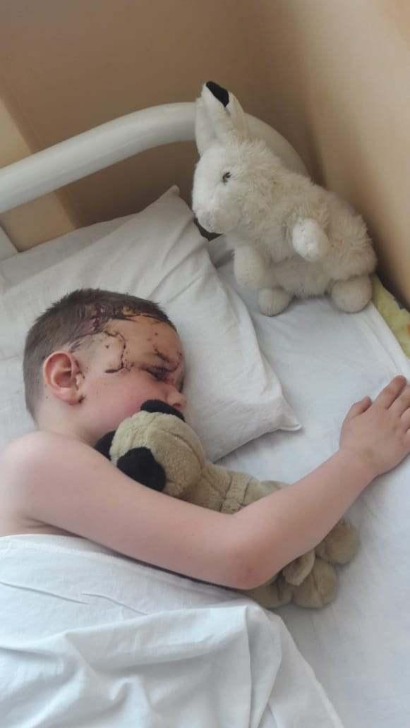 Новороссийский малыш, которого покусала собака, мечтает о четвероногом друге