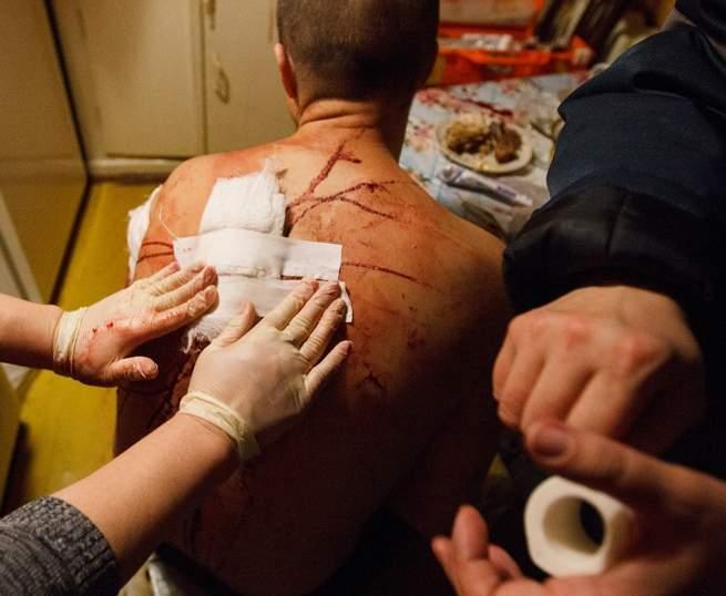 В Новороссийске во время ссоры мужчине воткнули нож в спину