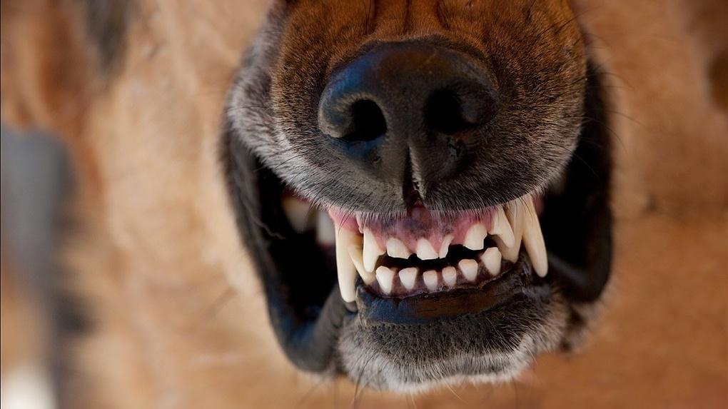 В Новороссийске собаки покусали детей
