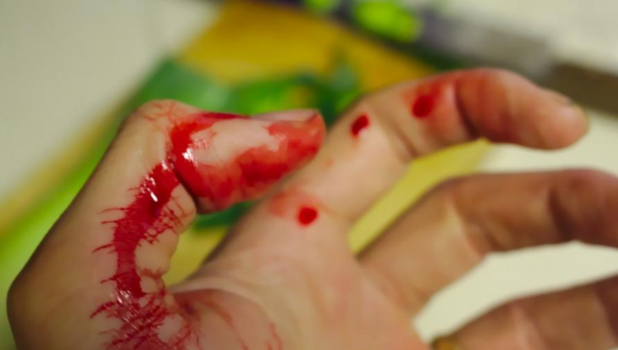 В Новороссийске двое мужчин оказались в больнице с огнестрельными ранениями