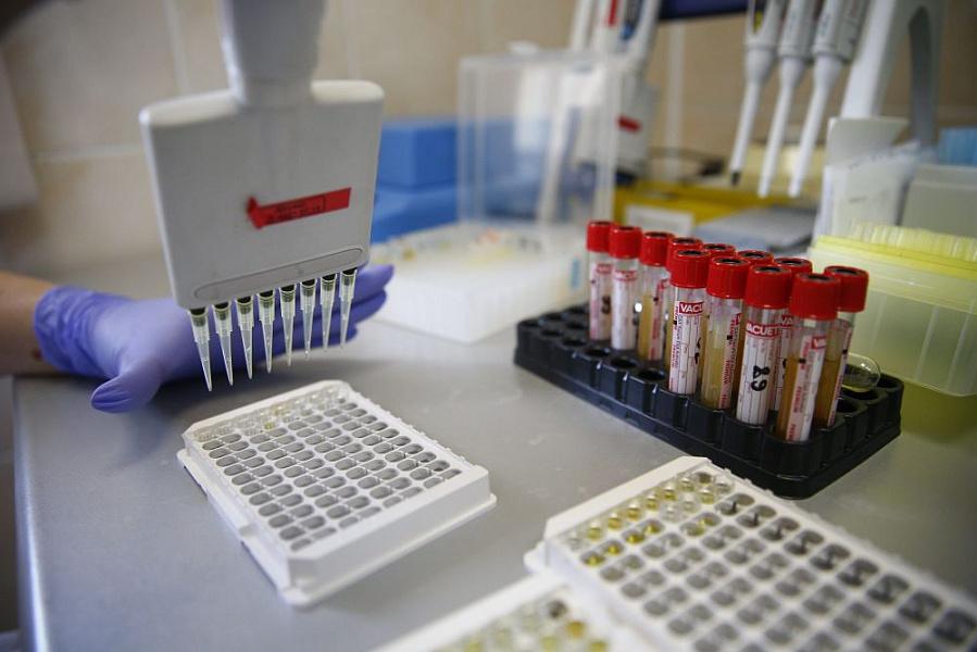 ВКраснодарском крае еще один человек выписался избольницы после лечения откоронавирусной инфекции COVID-19, ребенок изАнапы— под подозрением