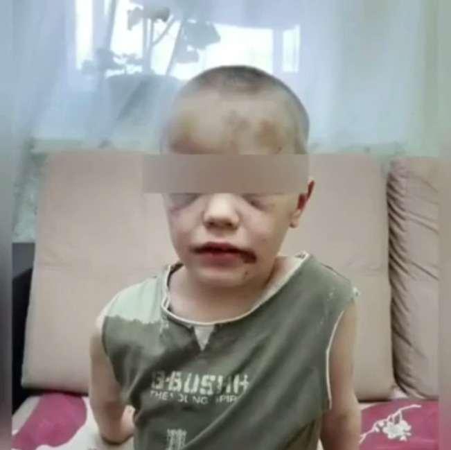 Избитому матерью шестилетнему Жене из Новороссийска сочувствует вся страна