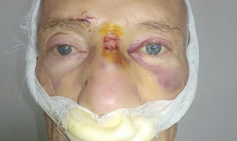 Перелом носа и сотрясение головного мозга получил новороссийский пенсионер в маршрутке