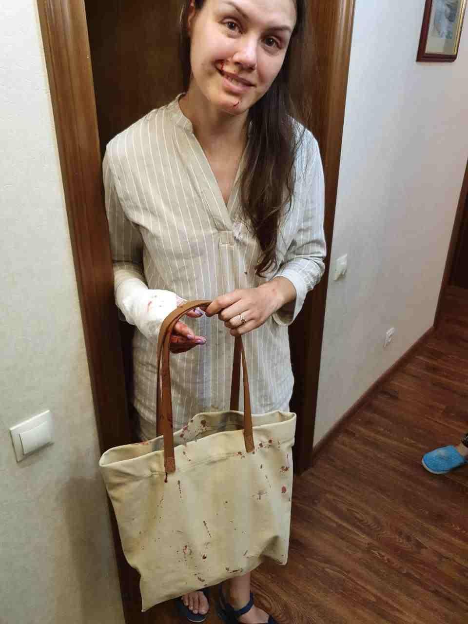 Во дворе новороссийской многоэтажки на женщину напал  стафф